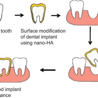 Clinical Oral Implants Research RG Impact Rankings 2017